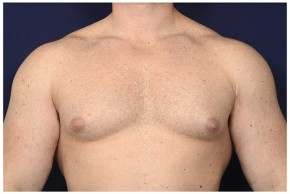 Before Photo - Gynecomastia - Case #16353 - 32 year old man treated with Male Breast Reduction - Frontal View