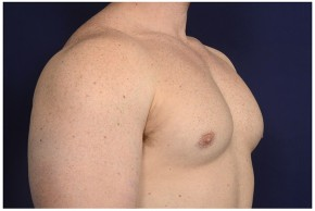 After Photo - Gynecomastia - Case #16353 - 32 year old man treated with Male Breast Reduction - Oblique View