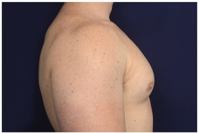 After Photo - Gynecomastia - Case #16353 - 32 year old man treated with Male Breast Reduction - Lateral View