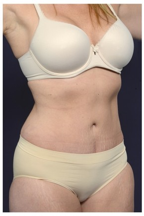 After Photo - Tummy Tuck - Case #16354 - 40 year old woman treated with an Abdominoplasty - Oblique View