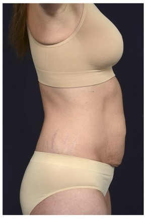 Before Photo - Tummy Tuck - Case #16354 - 40 year old woman treated with an Abdominoplasty - Lateral View