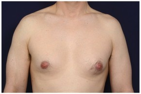 Before Photo - Gynecomastia - Case #16355 - 42 year old man treated with Male Breast Reduction - Frontal View