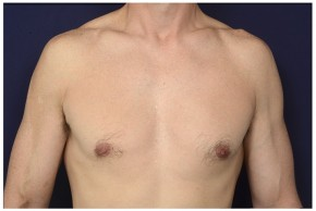 After Photo - Gynecomastia - Case #16355 - 42 year old man treated with Male Breast Reduction - Frontal View