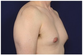 Before Photo - Gynecomastia - Case #16355 - 42 year old man treated with Male Breast Reduction - Oblique View