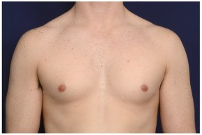 Before Photo - Gynecomastia - Case #16357 - 32 year old man treated with Male Breast Reduction - Frontal View