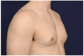 Before Photo - Gynecomastia - Case #16357 - 32 year old man treated with Male Breast Reduction - Oblique View