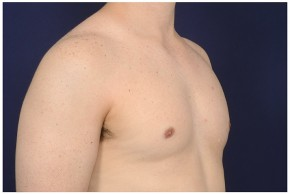 After Photo - Gynecomastia - Case #16357 - 32 year old man treated with Male Breast Reduction - Oblique View