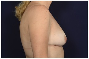 Before Photo - Breast Augmentation - Case #16359 - 49 year old woman treated with Breast Augmentation - Lateral View