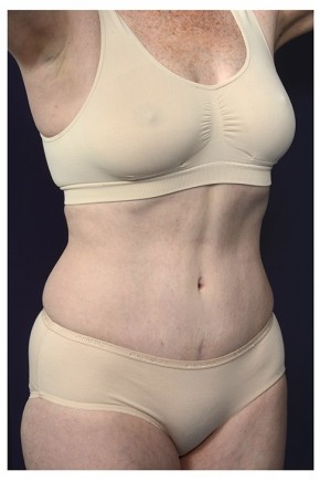 After Photo - Tummy Tuck - Case #16360 - 50 year old woman treated with an Abdominoplasty - Oblique View