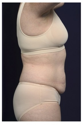 Before Photo - Tummy Tuck - Case #16360 - 50 year old woman treated with an Abdominoplasty - Lateral View
