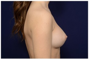 After Photo - Breast Augmentation - Case #16363 - 24 year old woman treated with Breast Augmentation - Lateral View