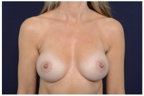 After Photo - Breast Augmentation - Case #16364 - 49 year old woman treated with Breast Augmentation - Frontal View