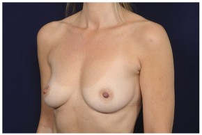 Before Photo - Breast Augmentation - Case #16364 - 49 year old woman treated with Breast Augmentation - Oblique View