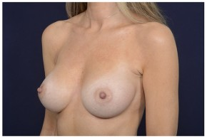 After Photo - Breast Augmentation - Case #16364 - 49 year old woman treated with Breast Augmentation - Oblique View