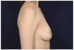 Before Photo - Breast Augmentation - Case #16369 - 39 year old woman treated with Breast Augmentation - Lateral View