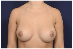 After Photo - Breast Augmentation - Case #16371 - 28 year old woman treated with Breast Augmentation - Frontal View