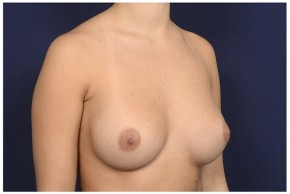 After Photo - Breast Augmentation - Case #16371 - 28 year old woman treated with Breast Augmentation - Oblique View