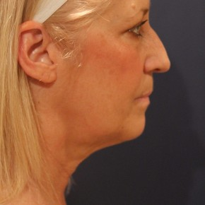 Before Photo - Facelift - Case #16381 - Balanced face after facelift - Lateral View