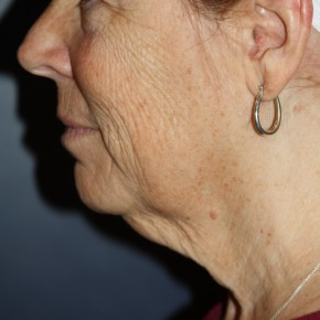 Before Photo - Facelift - Case #16380 - Neck and feeling lifted - Lateral View