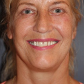 After Photo - Facelift - Case #16381 - Balanced face after facelift - Frontal View