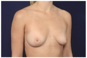Before Photo - Breast Augmentation - Case #16466 - 29 year old woman treated with Breast Augmentation - Oblique View