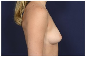 Before Photo - Breast Augmentation - Case #16466 - 29 year old woman treated with Breast Augmentation - Lateral View