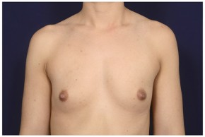 Before Photo - Breast Augmentation - Case #16468 - 26 year old woman treated with Breast Augmentation - Frontal View