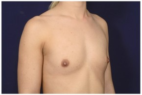 Before Photo - Breast Augmentation - Case #16468 - 26 year old woman treated with Breast Augmentation - Oblique View