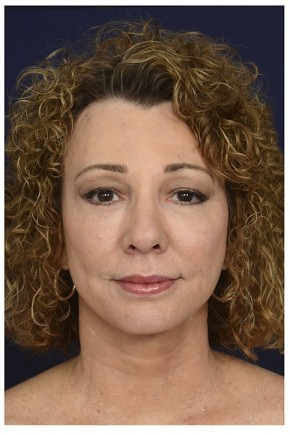 After Photo - Facial Rejuvenation - Case #16471 - 50 year old woman treated with Full Facial Rejuvenation - Frontal View