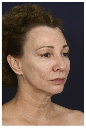 Before Photo - Facial Rejuvenation - Case #16471 - 50 year old woman treated with Full Facial Rejuvenation - Oblique View