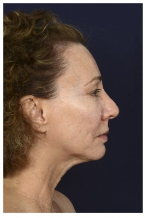 Before Photo - Facial Rejuvenation - Case #16471 - 50 year old woman treated with Full Facial Rejuvenation - Lateral View