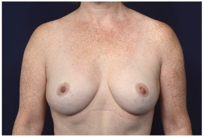 After Photo - Breast Lift - Case #16472 - 49 year old woman treated with a Breast Lift - Frontal View