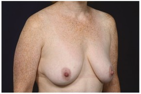 Before Photo - Breast Lift - Case #16472 - 49 year old woman treated with a Breast Lift - Oblique View