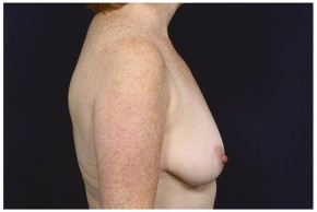 Before Photo - Breast Lift - Case #16472 - 49 year old woman treated with a Breast Lift - Lateral View