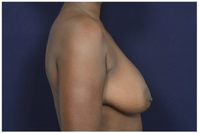 Before Photo - Breast Lift - Case #16473 - 39 year old woman treated with a Breast Lift - Lateral View
