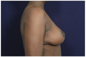After Photo - Breast Lift - Case #16473 - 39 year old woman treated with a Breast Lift - Lateral View