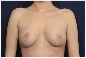 After Photo - Breast Lift - Case #16474 - 23 year old woman treated with a Breast Lift - Frontal View