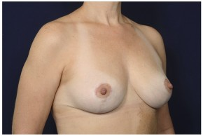 After Photo - Breast Reduction - Case #16475 - 43 year old woman treated with Breast Reduction - Oblique View