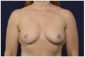 After Photo - Breast Lift - Case #16476 - 46 year old woman treated with a Breast Lift - Frontal View