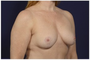 After Photo - Breast Lift - Case #16476 - 46 year old woman treated with a Breast Lift - Oblique View