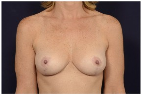After Photo - Breast Lift - Case #16477 - 48 year old woman treated with a Breast Lift - Frontal View
