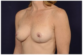 After Photo - Breast Lift - Case #16477 - 48 year old woman treated with a Breast Lift - Oblique View