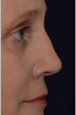 After Photo - Fillers - Case #16481 - 50 year old woman treated with nonsurgical rhinoplasty - Lateral View