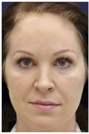 Before Photo - Fillers - Case #16482 - 40 year old woman treated with Voluma - Frontal View