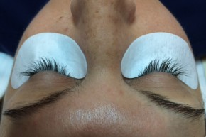 Before Photo - Eyelash Enhancement - Case #16486 - 37 year old woman treated with eyelash enhancement - Frontal View