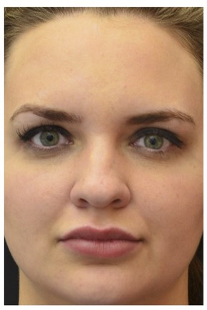 Before Photo - Fillers - Case #16487 - 25 year old woman treated with nonsurgical rhinoplasty - Frontal View