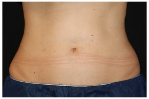 After Photo - Nonsurgical Fat Reduction - Case #16497 - 37 year old woman treated with nonsurgical fat reduction. - Frontal View