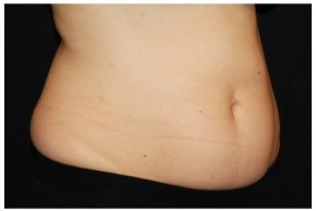 Before Photo - Nonsurgical Fat Reduction - Case #16497 - 37 year old woman treated with nonsurgical fat reduction. - Oblique View
