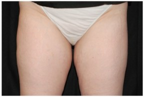 Before Photo - Nonsurgical Fat Reduction - Case #16499 - 45 year old woman treated with nonsurgical fat reduction. - Frontal View