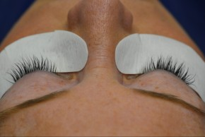After Photo - Eyelash Enhancement - Case #16505 - 45 year old woman treated with eyelash enhancement - Frontal View
